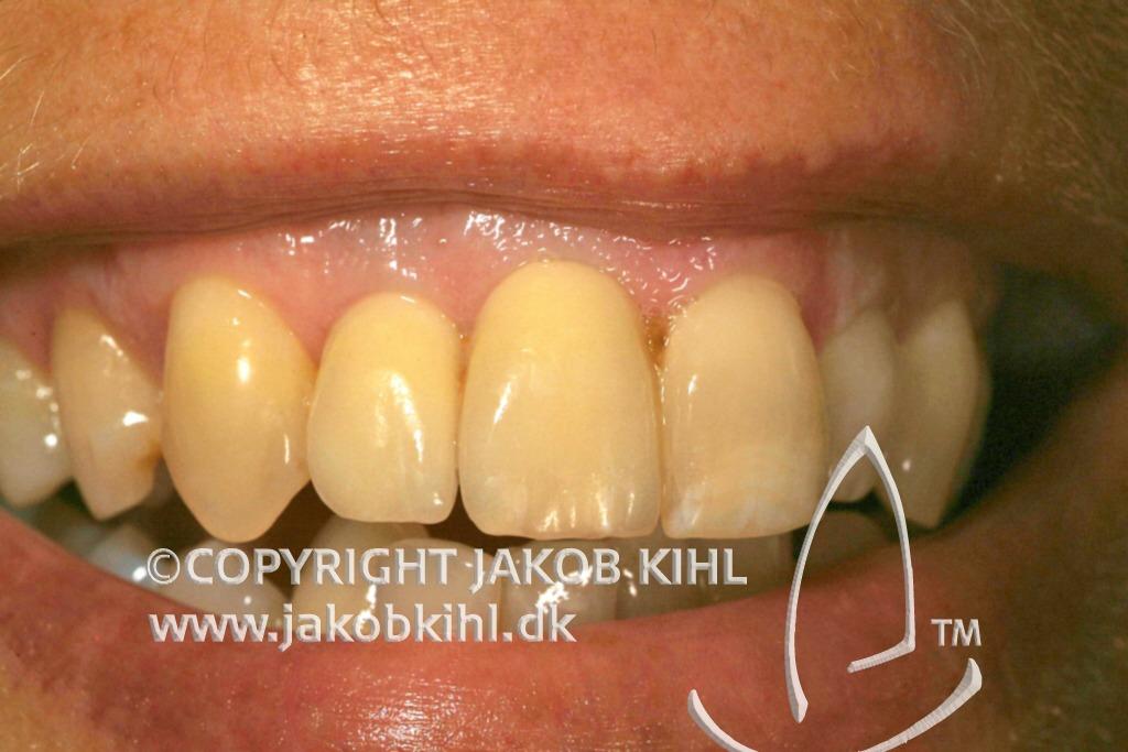 Tandimplantat Jakob Kihl